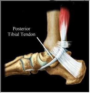 Posterior Tibial Tendonitis Foothealth Insoles